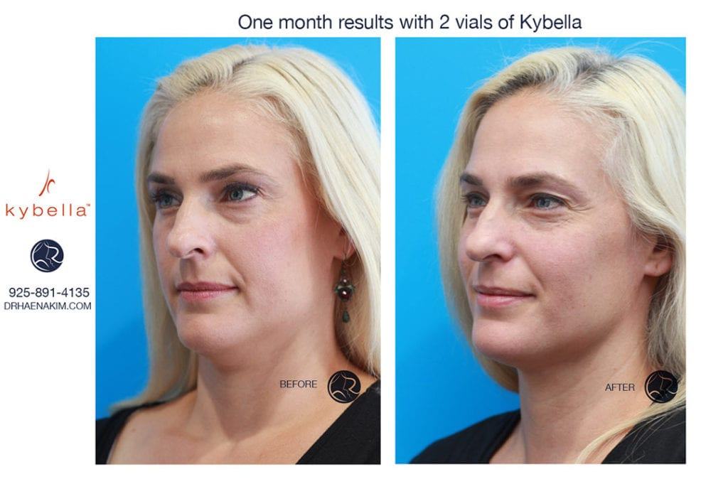 Kybella Walnut Creek, CA Dr Haena Kim